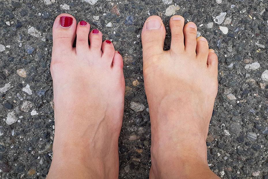 Kakšen je moj tip stopala?
